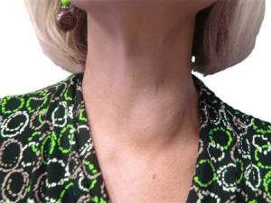 Киста в щитовидке