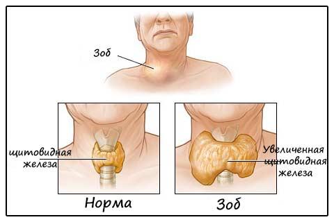 Картинка-схема зоба щитовидки