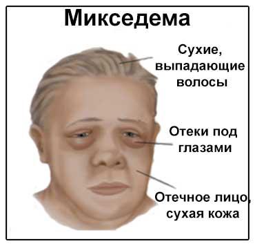 Изображение симптомов микседемы