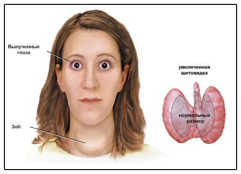 Изображение признаков диффузного токсического зоба