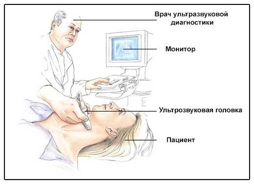 Узи щитовидной железы - иллюстрация