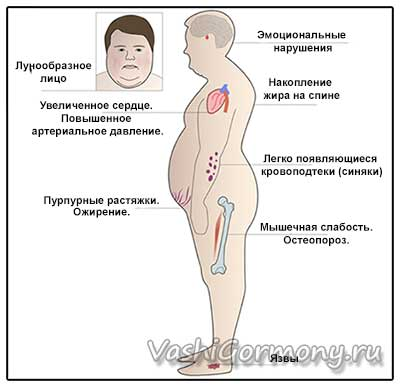 Рисунок-схема с изображением симптомов гиперкортицизма
