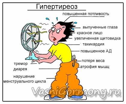 Рисунок-схема симптомов гипертиреоза