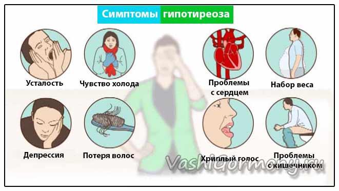Рисунок-схема симптомов заболеваний щитовидной железы со сниженной функцией