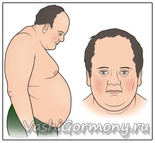 Рисунок: избыток гормона кортизол может вызвать лишний вес