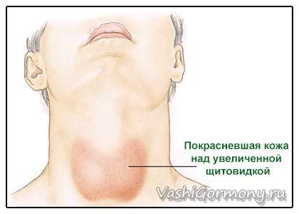 Рисунок: покрасневшая кожа шеи при воспалении щитовидки