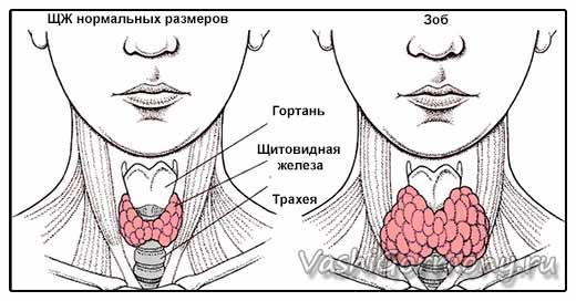 Рисунок  щитовидной железы нормального размера и зоба