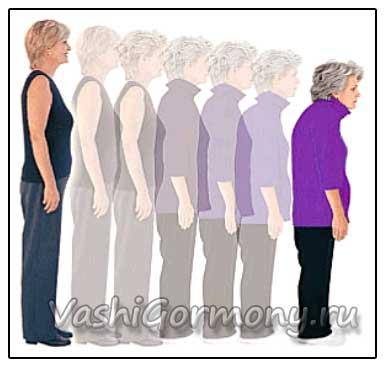 Рисунок постепенного уменьшения роста при остеопорозе