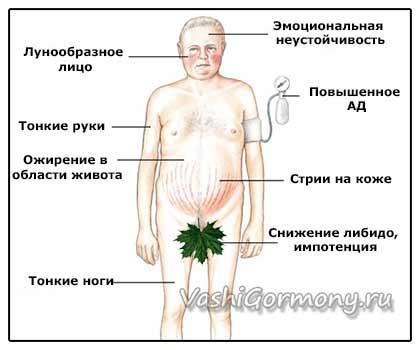 Рисунок-схема симптомов синдрома Иценко-Кушинга