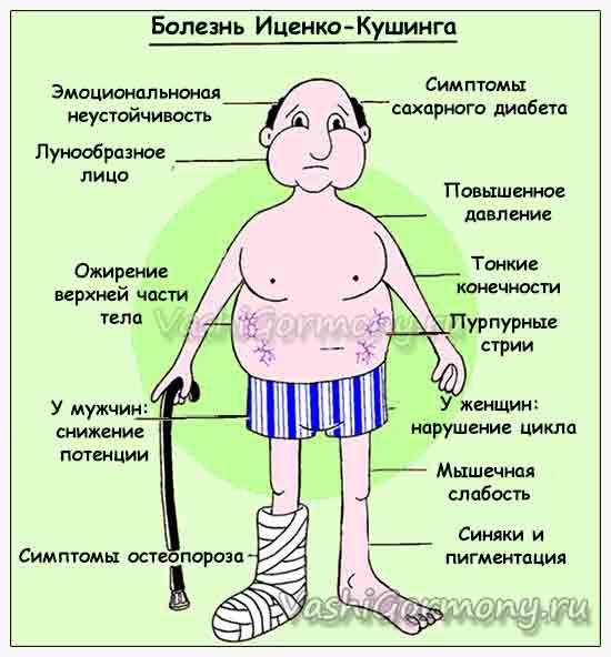 Рисунок с симптомами болезни Иценко-Кушинга