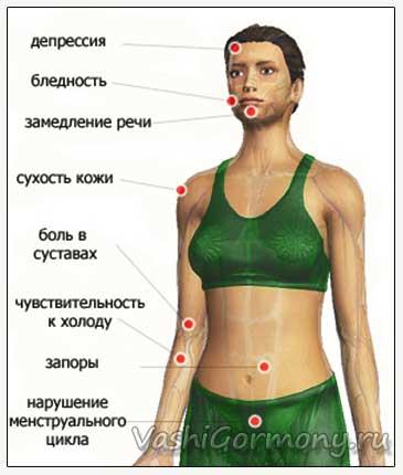 Рисунок симптомов гипотиреоза - болезни щитовидки
